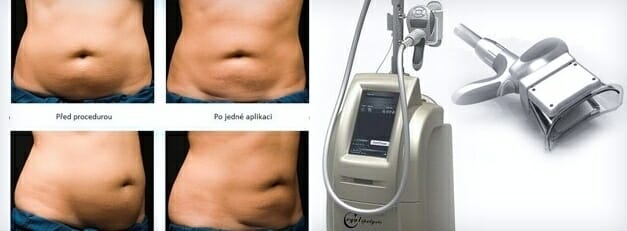 Cryolipolysis freezing of fat cells, bevor and after treatment, Non-invasive liposuction without surgery, Prague 9