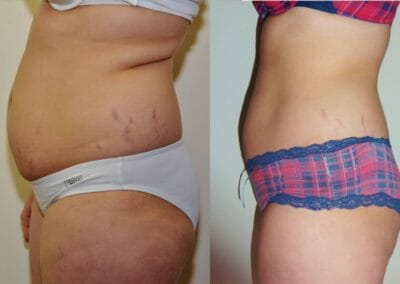 Painless liposuction, a week before the wedding, minus 8 cm, combination (cryolipolysis, lipolaser, Slim-up etc.), at the same time stretch marks, Dana Clinic Prague 9