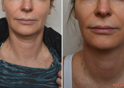 Radiofrequency Rejuvenation, Dana Clinic, Prague 9, Try it now