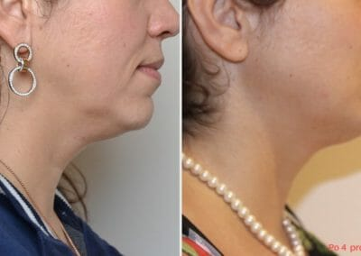 Radiofrequency liposuction Exilis and radiofrequency rejuvenation Exilis chin, after 4 treatments.  Try non-invasive anti-aging without surgery.