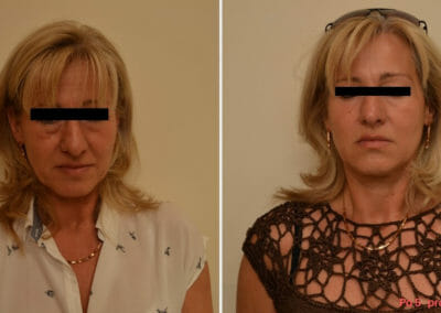 Radiofrequency rejuvenation Exilis. Dana Clinic, Prague 9, Klient after 5 treatments.Try non-invasive anti-aging without surgery.