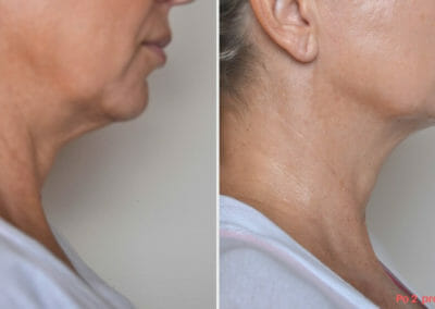Face and neck rejuvenation by radiofrequency, focusing on nasal scratches and chin, Dana Clinic, Prague 9, Try it and see the result right away.