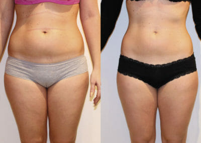Painless liposuction, weight loss, body strengthening loss of 8 cm for 6 kur, diet adjustment, Dana Beauty studio, Prague 9