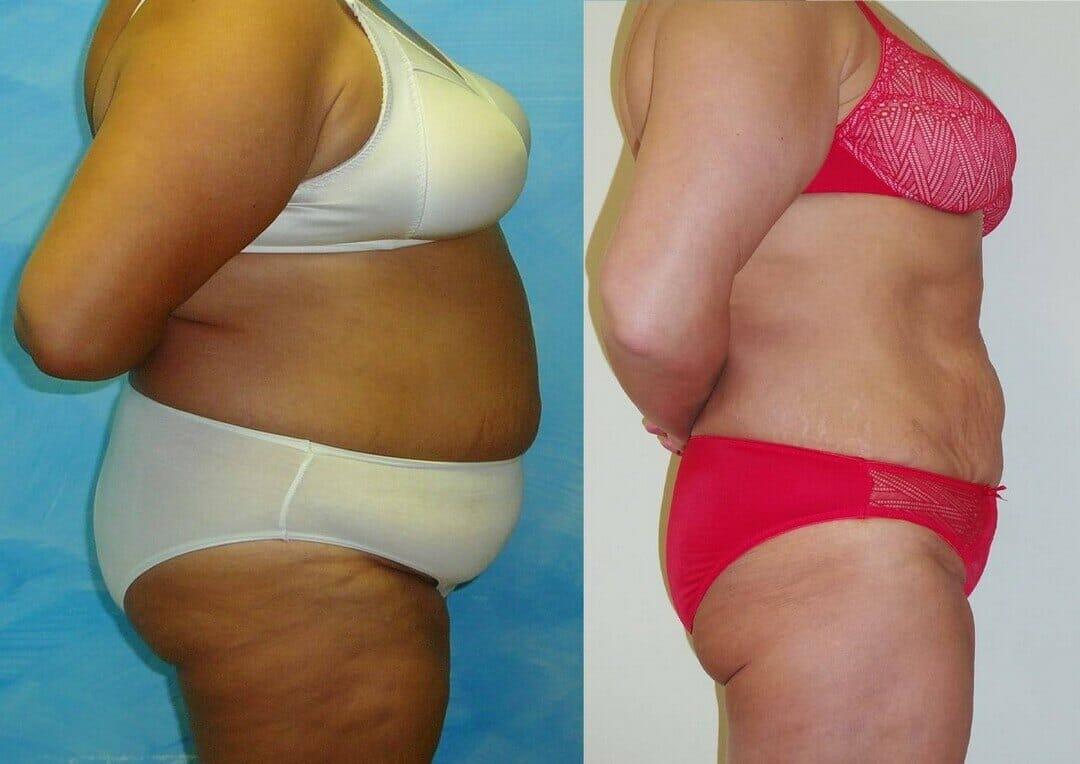 Bezbolestná liposukce, Slim up – liposukce záda, břicho, boky, stehna úbytek 35 cm během roku, Praha 9 Dana Clinic,