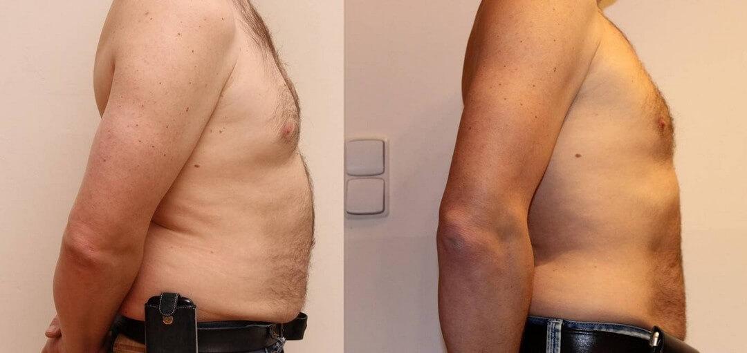 Fettabsaugung ohne OP, Kryolipolyse Fett weg mit Kälte, Verlust von 18 cm in 2 Monaten, Prag 9,