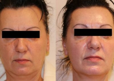 Oxygen facial therapy, facial rejuvenation, client after one treatment, removal of wrinkles on forehead, under eyes and neck, Beauty studio Dana, Prague 9