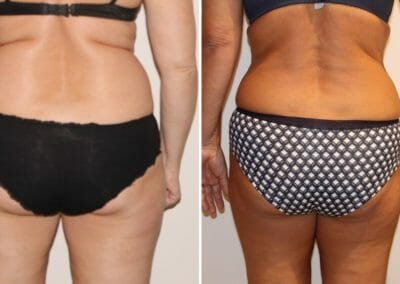 Cryolipolysis freezing of fat cells and non-invasive liposuction without surgery, 8 cm loss, Dana Clinic.