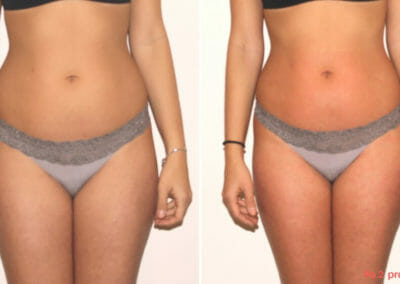 Painless liposuction, strengthening of hips, thighs and waist shaping, after two procedures, 2 cm loss, Dana Clinic, Prague 9