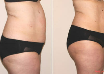 Non-invasive liposuction without surgery, client 10 cm loss after 12 courses . Book now in Prague. See the result right away.