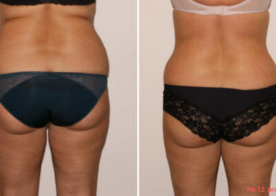 Painless liposuction, slimming of hips, back, buttocks, thighs after twelve procedures, 10 cm loss, Dana Clinic, Prague 9, Try it and see the result right away.
