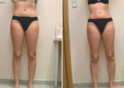 Painless liposuction, stiffening of the abdomen, hips, thighs after four treatments, Dana Clinic, Prague 9