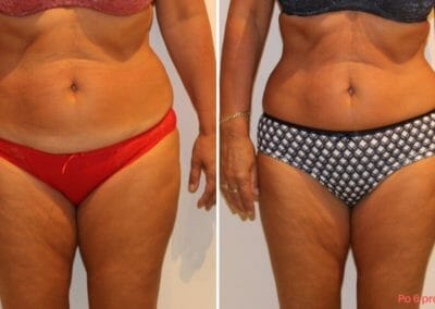 Painless liposuction, weight loss of the abdomen, hips, thighs after six treatments, loss of 10 cm, Dana Clinic, Prague 9, Try it and see the result right away.