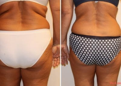 Painless liposuction, weight loss of the abdomen, back, buttocks, thighs after six procedures, 10 cm loss, Dana Clinic, Prague 9, Try it and see the result right away.