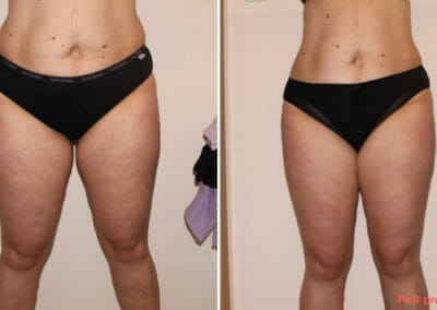 Painless liposuction, weight loss of the abdomen, hips, thighs after eight treatments, 10 cm loss, Dana Clinic, Prague 9,