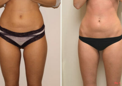 Painless liposuction, slimming of the hips and shaping the waist after one procedure, loss of 2 cm, Dana Clinic, Prague
