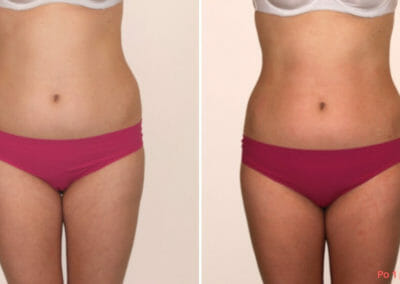 Painless liposuction, slimming of the hips and shaping the waist after one procedure, 2 cm loss, Dana Clinic, Prague 9, Try it