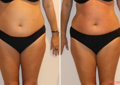 Painless liposuction, weight loss of the abdomen, hips, after eight treatments, 6 cm loss, Dana Clinic, Prague 9, Try it