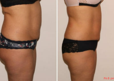 Lipomassage to remove fat, cryolipolisis, lipolaser, after eight treatments, 8 cm loss, Dana Clinic, Prague 9, Try it.