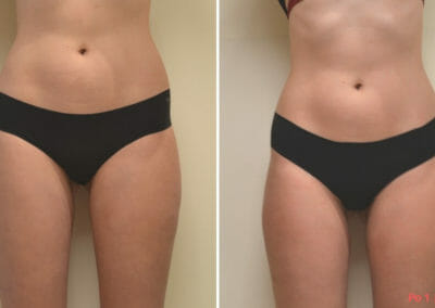 Painless liposuction, weight loss of the abdomen, hips, thighs after one procedure, 2 cm loss, Dana Clinic, Prague