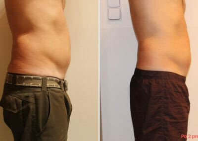 Painless liposuction, abdominal slimming after two procedures, 3 cm loss, Dana Clinic, Prague 9,