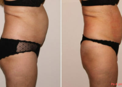Painless liposuction, abdominal slimming after 4 treatments, 5 cm loss, Dana Clinic, Prague 9. Try it.