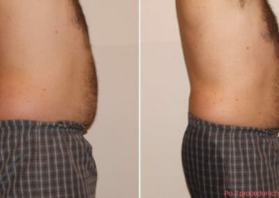 Painless abdominal liposuction after 2 procedures, Dana Clinic, Prague 9