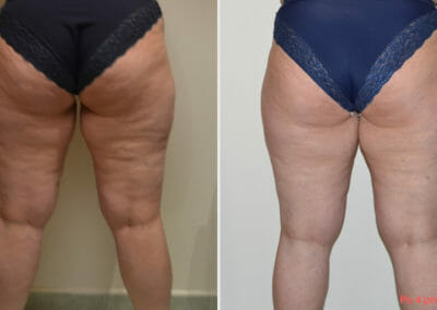 Lipomassage cellulite removal, 4 treatments, Dana Clinic, Prag 9, Book now.