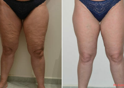 Cellulite reduction treatments, after 4 treatments with Slim up for cellulite removal Dana Clinic, Prague 9.