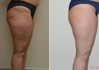 Slim up cellulite removal in Prague, 4 treatment, Dana Clinic, Book now.