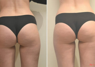 Lipomassage cellulite removal, after 1 treatment, Dana Clinic, Prag 9, Book now. Quick and effective.