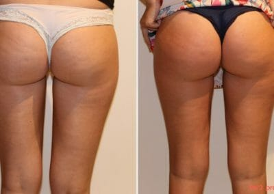 Painless removal of cellulite and fat on thighs and buttocks, after two procedures, Dana Clinic, Prague 9, fast and effective.