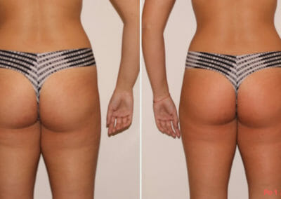 Painless removal of cellulite and fat on thighs and buttocks, after one procedure, Dana Clinic, Prague 9, fast and effective.