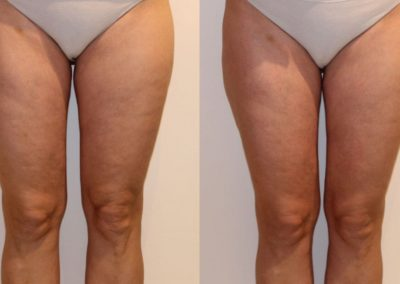 Cellulite reduction treatments, Lymphatic drainage cellulite removal after 1 treatment. Prague 9.