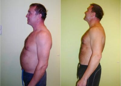 Destroy the fat slim-up, cryolipolisis, lipolasr, pain free, -15cm 4 weeks, Dana Clinic, Prag 9