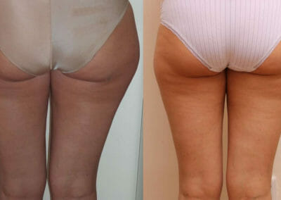 Lipomassage to remove fat of buttocks, side - bigger by about 3 cm larger, Beauty studio Dana, Praha