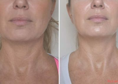 Painless radiofrequency rejuvenation Exilis, client after 2 treatments, Try non-invasive anti-aging without surgery. Prague 9