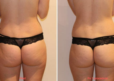 Lipomassage cellulite removal, after 1 treatment, Dana Clinic, Prag 9, Book now.