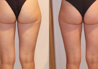Painless liposuction and alleviation of cellulite on thighs, after 1 procedure, Dana Clinic, Prague 9, fast and effective