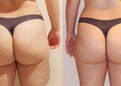 Painless liposuction and relief of cellulite on the buttocks and thighs, after 5 treatments, Dana Clinic, Prague 9, fast and effective