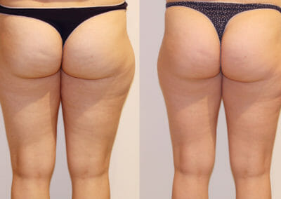 Lipomassage cellulite removal, after 3 treatments, Dana Clinic, Prague 9, fast and effective.