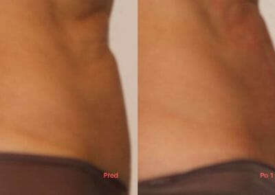 Painless liposuction and abdominal firming after one procedure, 3 cm loss, Dana Clinic, Prague 9,