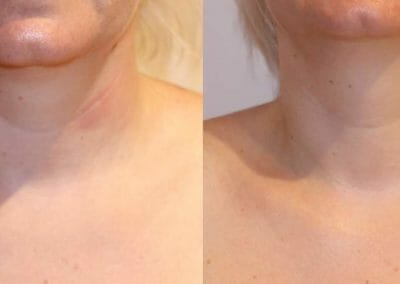 Painless liposuction and rejuvenation of the chin after 1 treatment. Dana Clinic, Prague 9, quickly and effectively
