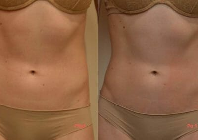 Painless liposuction and body shaping, client after 1 treatment, Dana Clinic, Prague 9, fast and effective