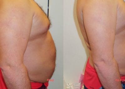Painless liposuction and abdominal firming, after 4 treatments, 7 cm loss, Dana Clinic, Prague 9, Try it now and see the result right away.