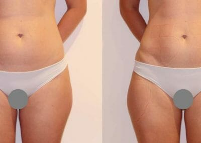 Painless liposuction and skin firming on the abdomen and legs, after 1 procedure -2cm, Dana Clinic, Prague 9, fast and effective