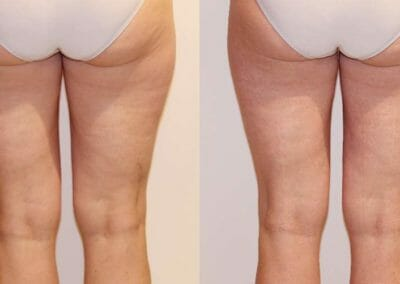 Painless liposuction and cellulite removal on thighs and buttocks, after 1 procedure, Dana Clinic, Prague 9, fast and effective -2cm