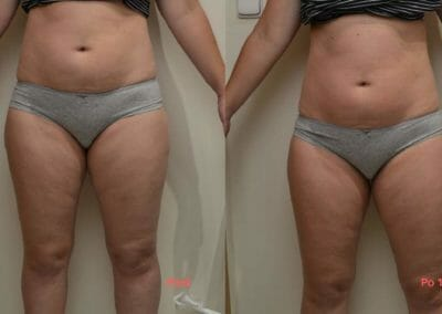 Painless liposuction and strengthening of the back and abdomen, after 1 procedure, loss of 3 cm, Dana Clinic, Prague 9, Try it now and see the result right away