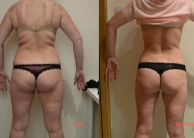 Painless liposuction and body firming, after 10 treatments, 10 cm loss, Dana Clinic, Prague 9, Try it now and see the result right away