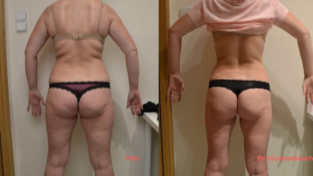 Bezbolestná liposukce a zpevnění těla, po 10 procedúřách, úbytek 10 cm, Dana Clinic, Praha 9, Vyzkoušejte a výsledek uvidíte hned