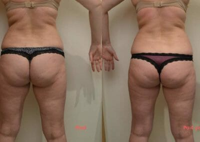 Painless liposuction and body firming, after 4 treatments -5cm, Dana Clinic, Prague, try and see